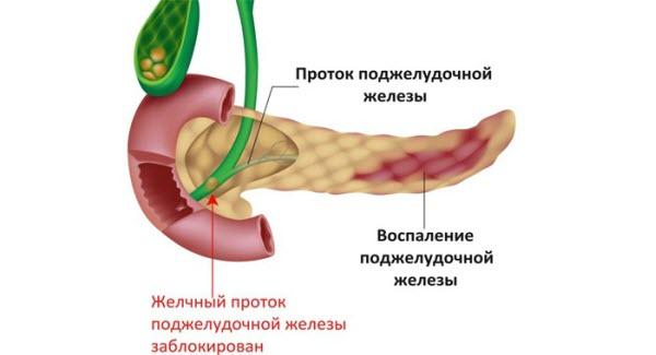 pankreatit-xronicheskij1