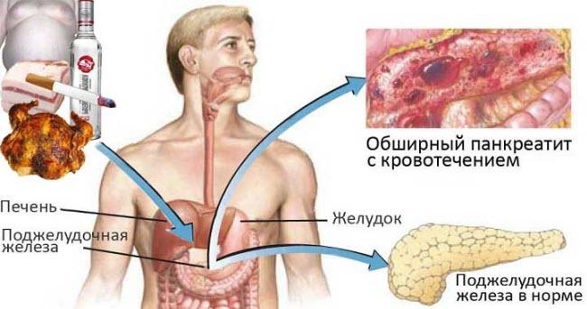 Хронический панкреатит как лечить как питаться