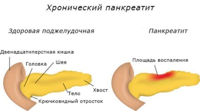 pankreatit-kartinki5