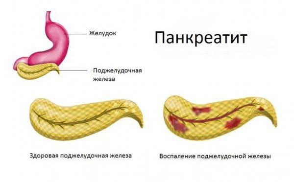 fibroz-i-lipofibroz-podzheludochnoj-zhelezy1