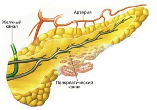destruktivnyj-pankreatit