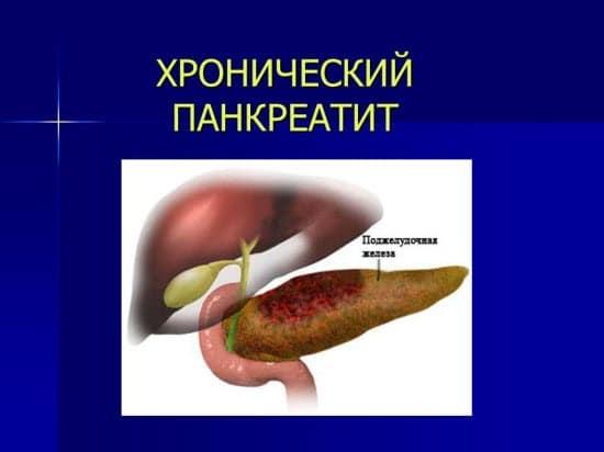 реферат острый панкреатит этиология