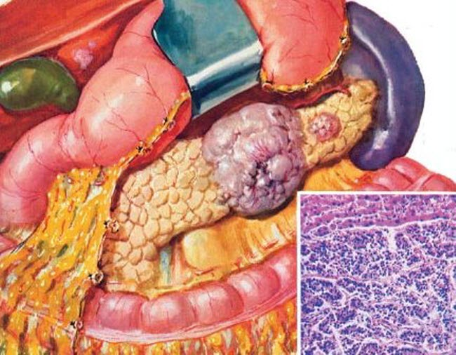 Pancreatic cancer with metastases treated