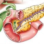 Патогенез гострого панкреатиту