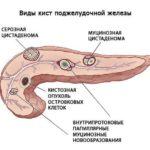 Псевдокиста підшлункової залози: симптоми і наслідки, хірургічне лікування