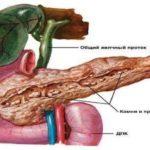 Кальцифікуючий панкреатит симптоми, лікування, прогноз