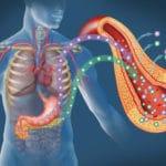 Який прогноз після операції при панкреонекроз підшлункової залози
