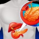 Скільки живуть з хронічним панкреатитом