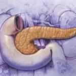 Фіброз і липофиброз підшлункової залози: що це таке, які причини, симптоматика та лікування