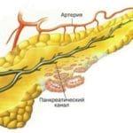 Деструктивний панкреатит: що це таке і як це лікувати?
