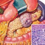 Пухлини підшлункової залози: симптоми, лікування, прогноз