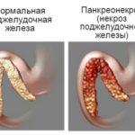 Некроз підшлункової залози: що це таке, симптоми, лікування, ускладнення