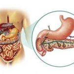Хронічний або гострий панкреатит код за МКХ
